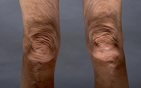 knees_1480949c